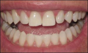 After Zoom Smile Whitening